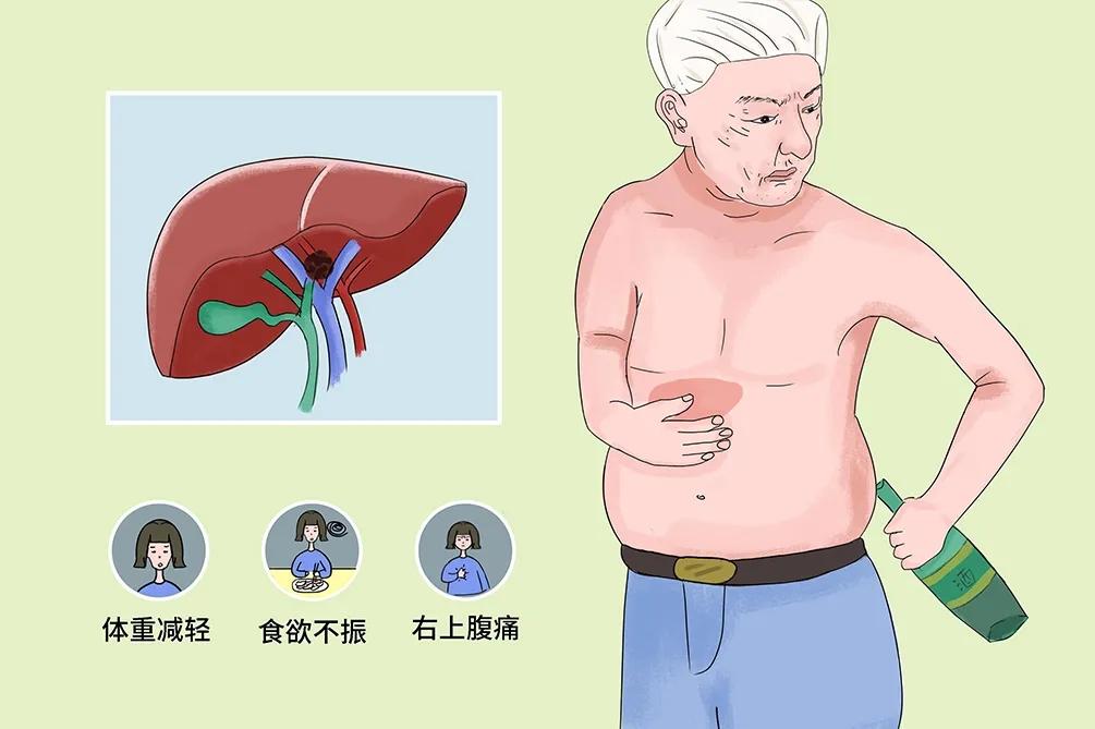 抗癌必修课——肝癌