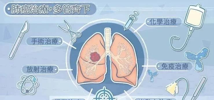 肺癌的治疗选项有哪些?
