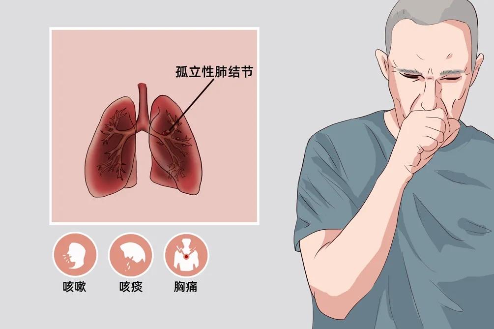抗癌必修课——孤立性肺结节