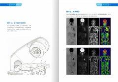 西藏康城肿瘤医院开展MR类PET成像技术